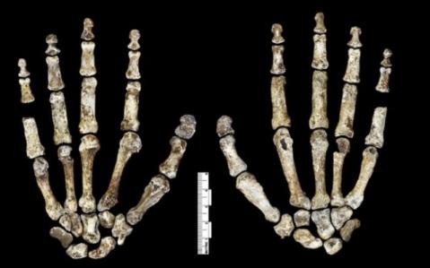 Le ossa delle mani di Homo Naledi: appaiono adatte all'utilizzo di utensili, ma le dita sono curve, poteva arrampicarsi