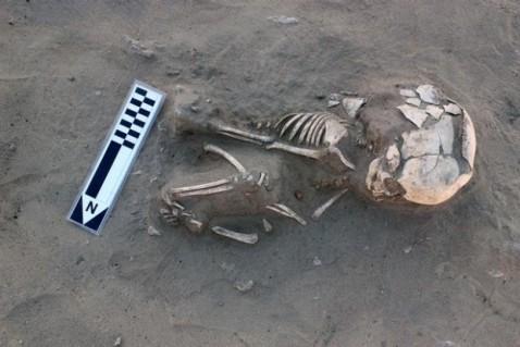 Lo scheletro del bimbo di un anno di età risalente al Protodinastico, morto per scorbuto