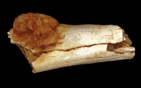 Il frammento di osso del piede di ominide di 1,7 milioni di anni fa con la presenza di un tumore maligno