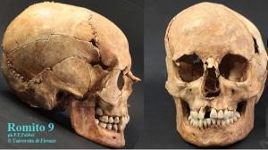 Il cranio Romito 9, appartenuto a un ragazzino di 10 anni vissuto 17mila anni fa